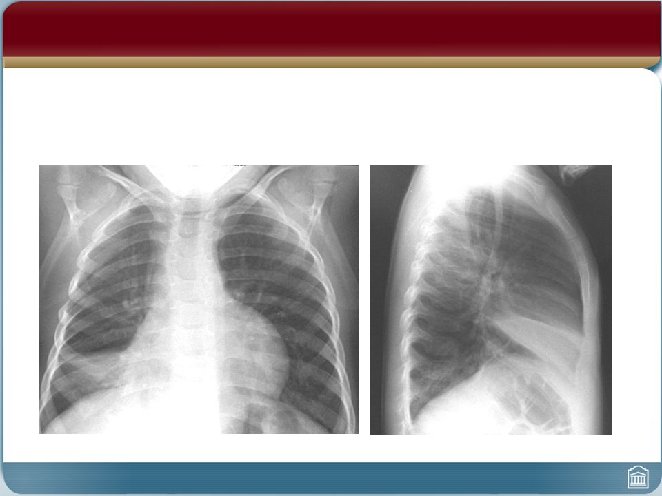 Right Middle Lobe - Lobar Pneumonia - Chest X-ray