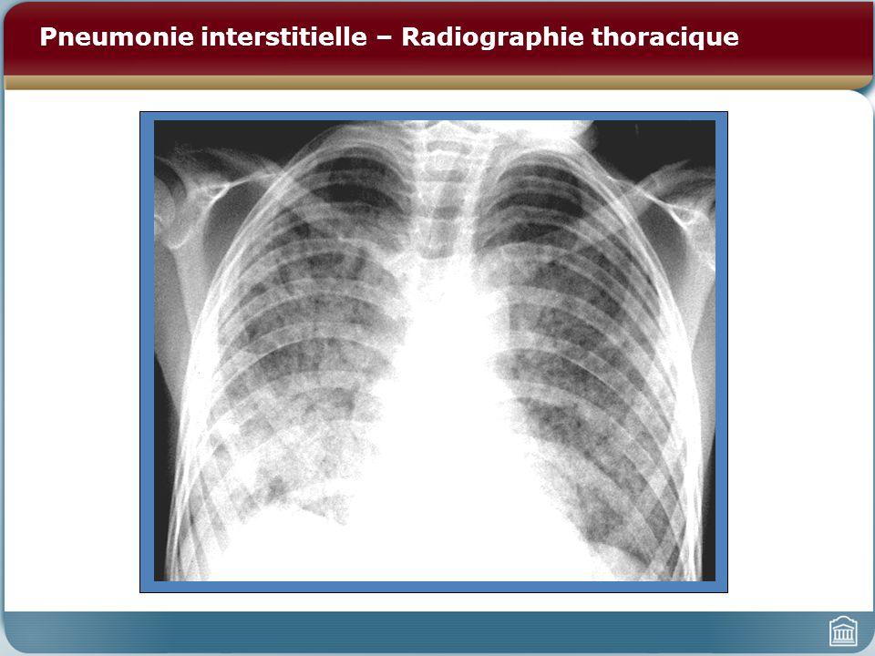Pneumonie interstitielle – Radiographie thoracique