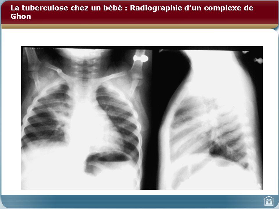 La tuberculose chez un bébé : Radiographie dun complexe de Ghon