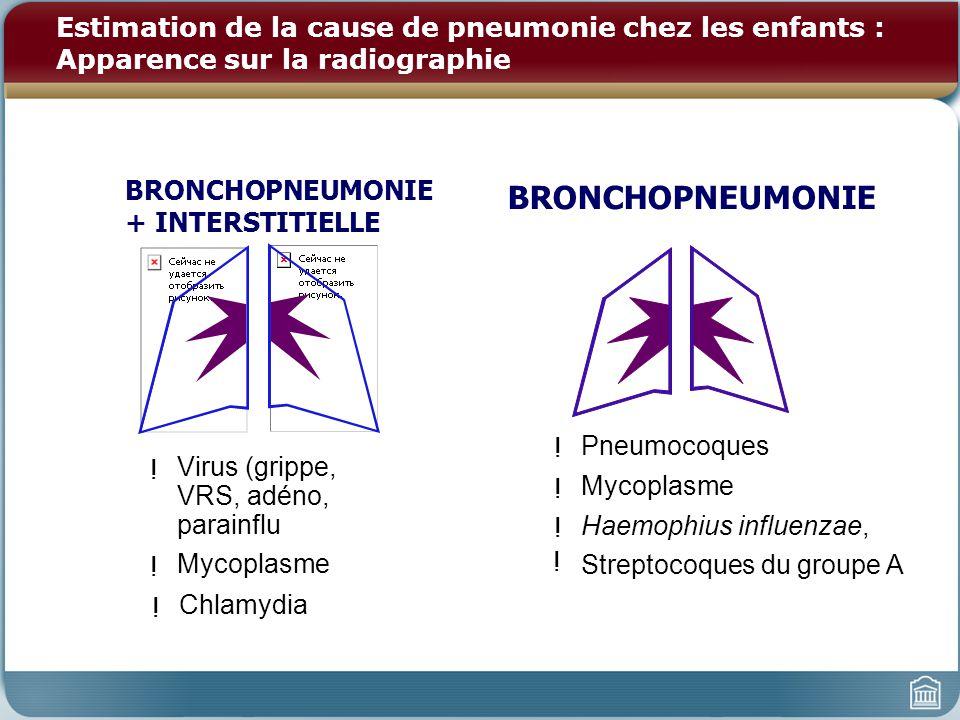 Estimation de la cause de pneumonie chez les enfants : Apparence sur la radiographie ! Virus (grippe, VRS, adéno, parainflu ! Mycoplasme ! Chlamydia B