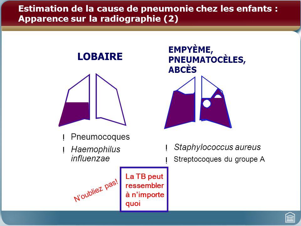 Estimation de la cause de pneumonie chez les enfants : Apparence sur la radiographie (2) ! Pneumocoques ! Haemophilus influenzae La TB peut ressembler