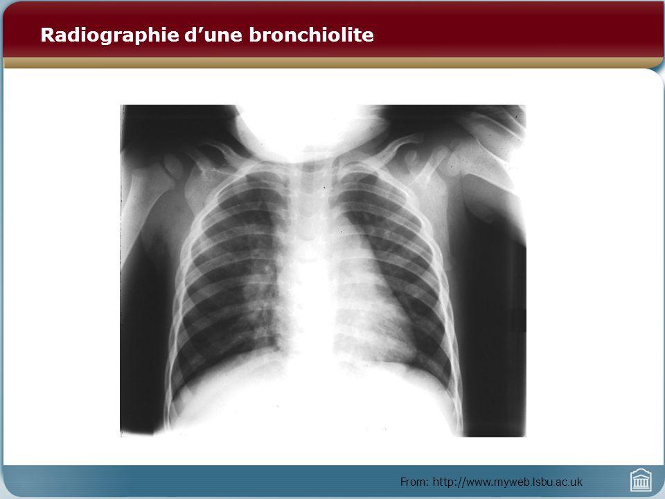 Bronchiolite : Traitement et pronostic Traitement – Oxygène – Fluides supplémentaires – 30-50 % des patients répondent aux bronchodilatateurs (épinéphrine en nébulisation) – Stéroïdes oraux – Protocole : épinephrine/ stéroide/ épinephrine au CHEEO Pronostic – Atteinte des voies respiratoires inférieures pendant linfection au VRS associée aux anticorps anti-VRS IgE (par opposition aux anti-VRS IgG).