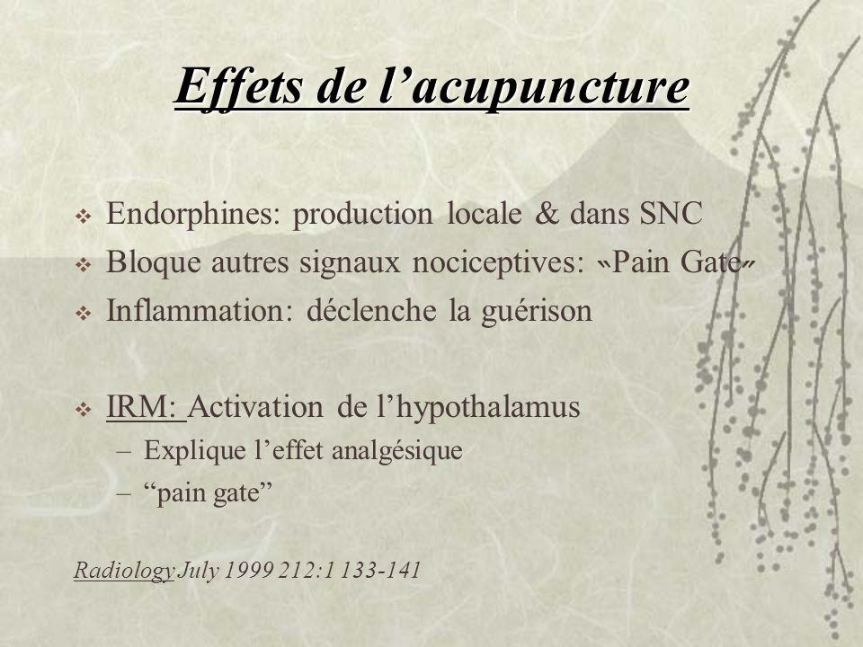 Effets de lacupuncture Endorphines: production locale & dans SNC Bloque autres signaux nociceptives: Pain Gate Inflammation: déclenche la guérison IRM