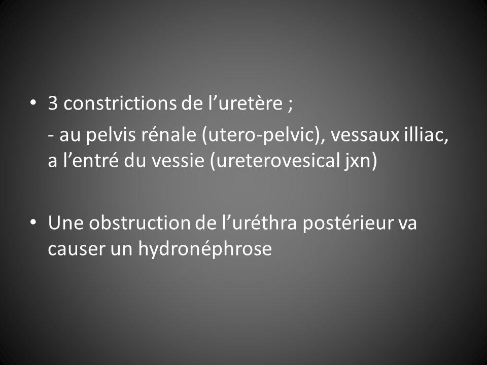 3 constrictions de luretère ; - au pelvis rénale (utero-pelvic), vessaux illiac, a lentré du vessie (ureterovesical jxn) Une obstruction de luréthra postérieur va causer un hydronéphrose