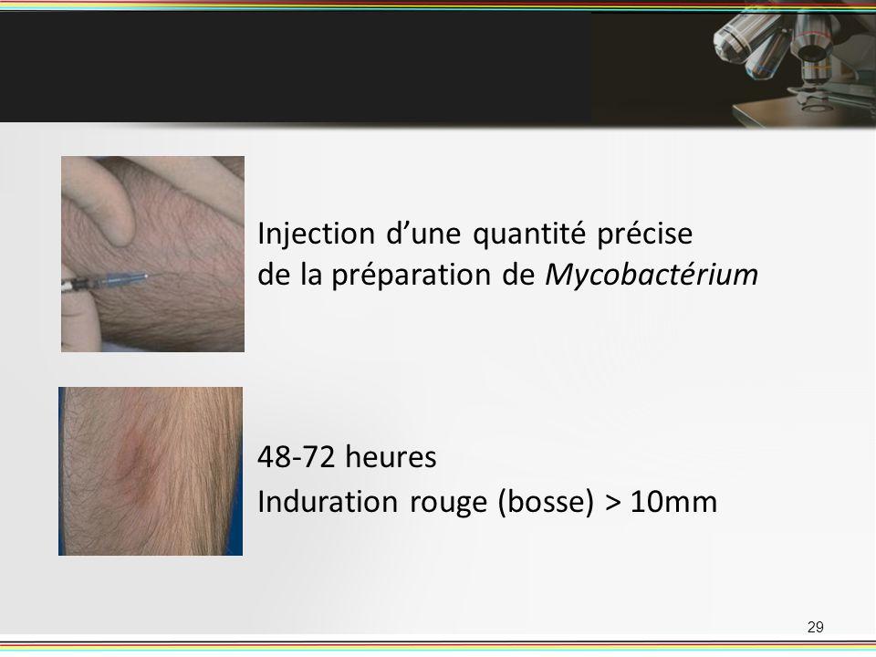 29 Injection dune quantité précise de la préparation de Mycobactérium 48-72 heures Induration rouge (bosse) > 10mm