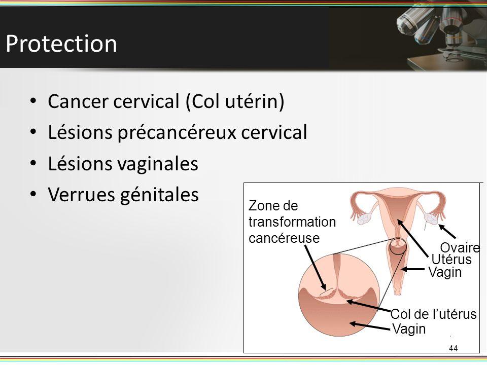 Zone de transformation cancéreuse Ovaire Vagin Utérus Col de lutérus Vagin Protection Cancer cervical (Col utérin) Lésions précancéreux cervical Lésio