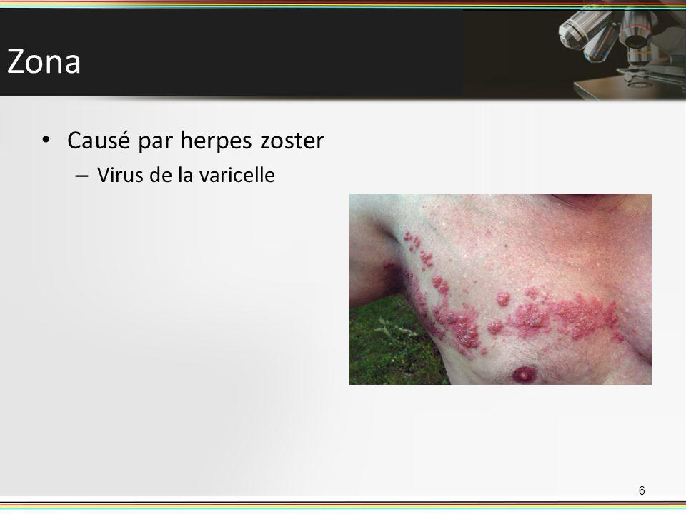 Zona Causé par herpes zoster – Virus de la varicelle 6