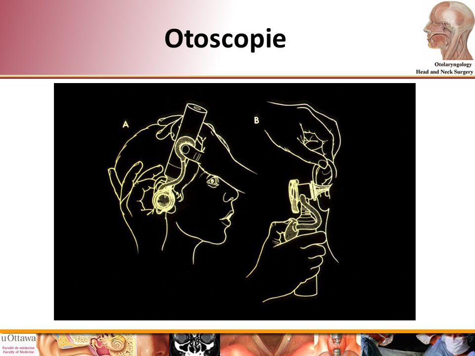 Otoscopie