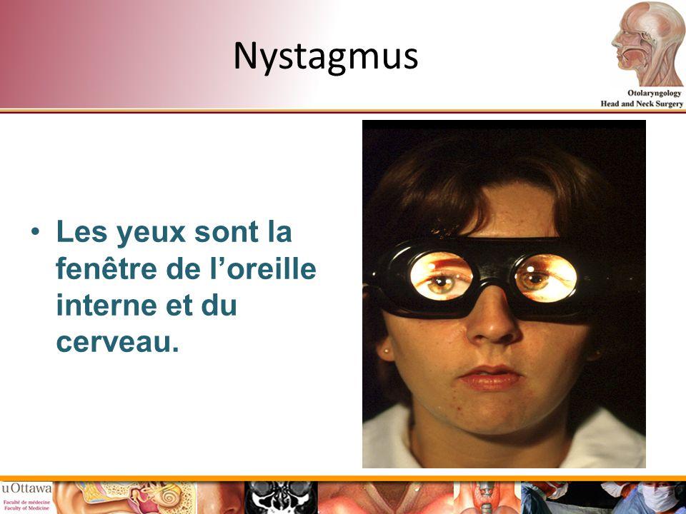 Nystagmus Les yeux sont la fenêtre de loreille interne et du cerveau.