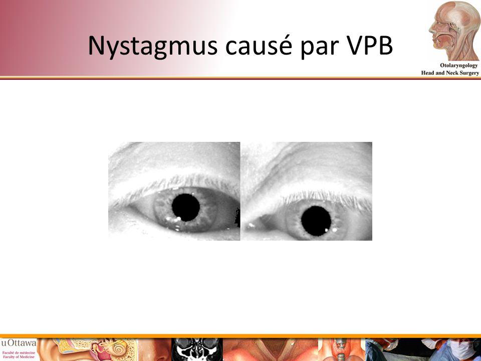 Nystagmus causé par VPB