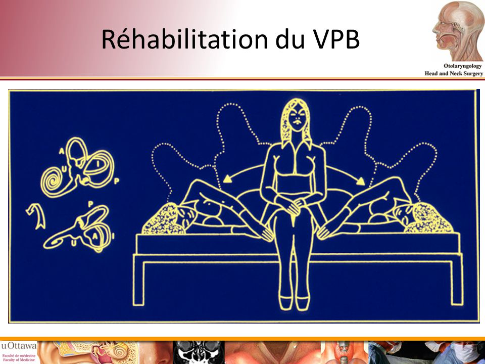Réhabilitation du VPB