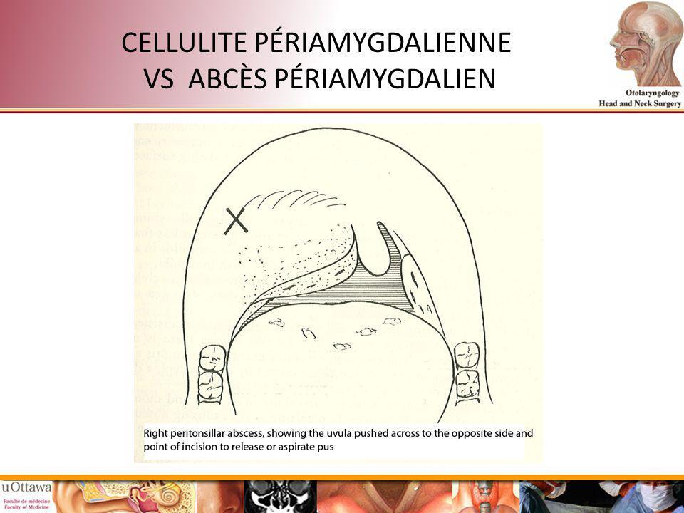 CELLULITE PÉRIAMYGDALIENNE VS ABCÈS PÉRIAMYGDALIEN