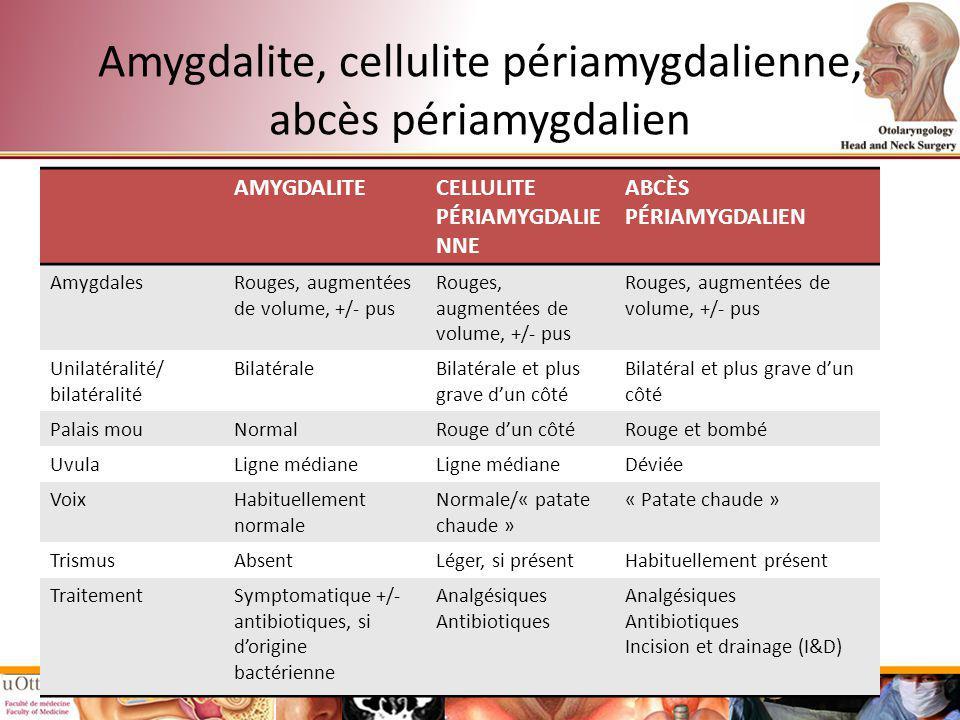 Amygdalite, cellulite périamygdalienne, abcès périamygdalien AMYGDALITECELLULITE PÉRIAMYGDALIE NNE ABCÈS PÉRIAMYGDALIEN AmygdalesRouges, augmentées de