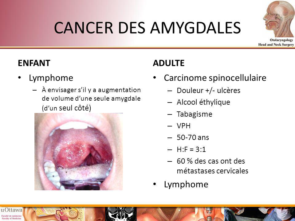 CANCER DES AMYGDALES ENFANT Lymphome – À envisager sil y a augmentation de volume dune seule amygdale (dun seul côté) ADULTE Carcinome spinocellulaire