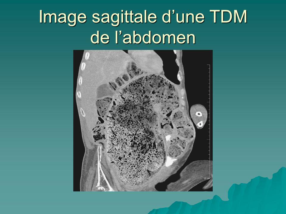 Image sagittale dune TDM de labdomen