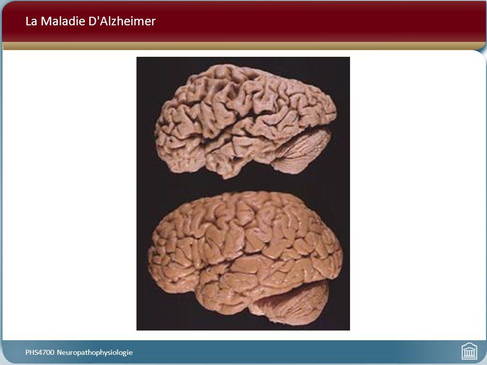 La Maladie D'Alzheimer PHS4700 Neuropathophysiologie