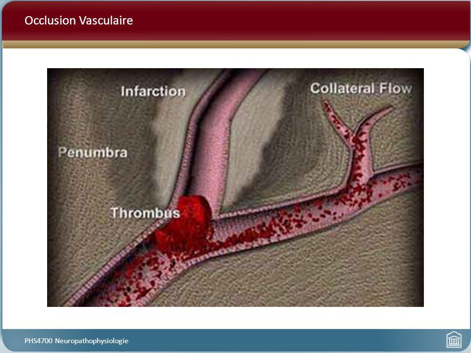 Occlusion Vasculaire PHS4700 Neuropathophysiologie