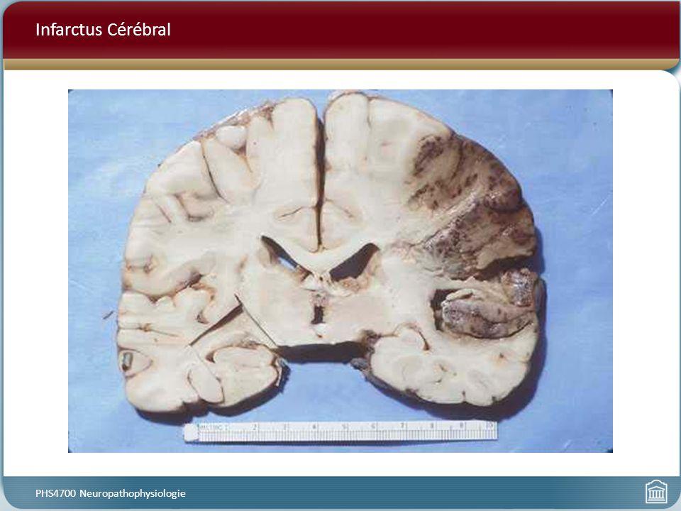 Infarctus Cérébral PHS4700 Neuropathophysiologie