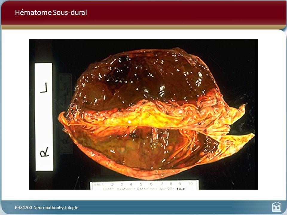 Hématome Sous-dural PHS4700 Neuropathophysiologie