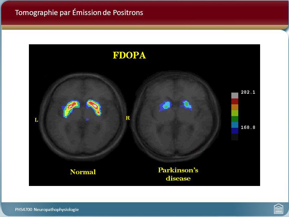Tomographie par Émission de Positrons PHS4700 Neuropathophysiologie