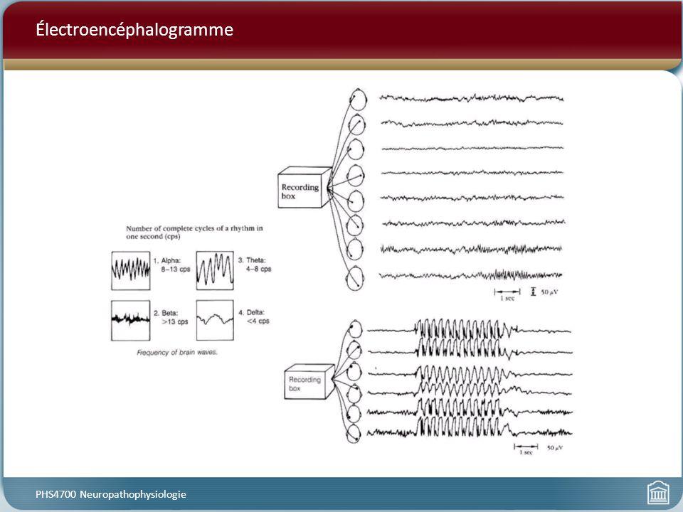Électroencéphalogramme PHS4700 Neuropathophysiologie