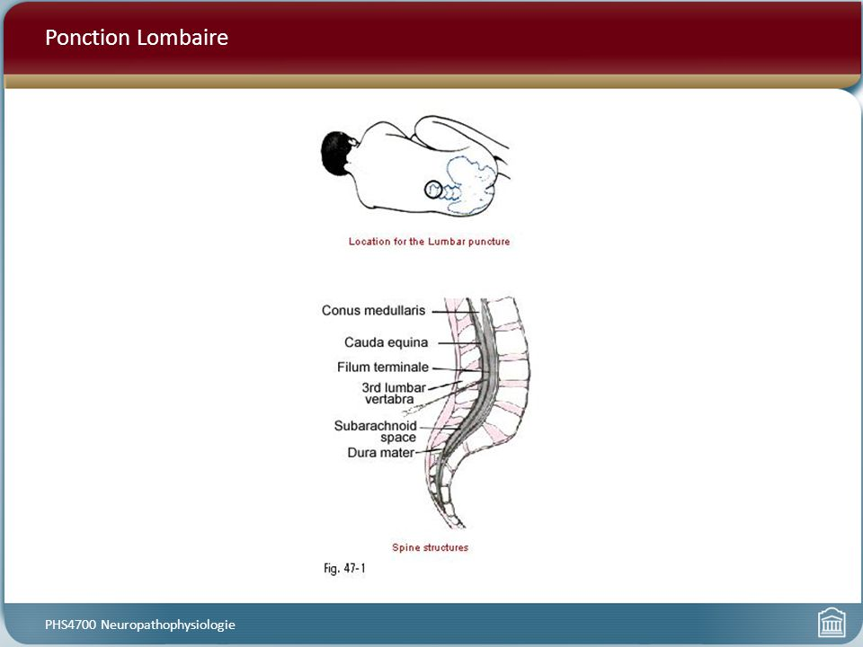 Ponction Lombaire PHS4700 Neuropathophysiologie