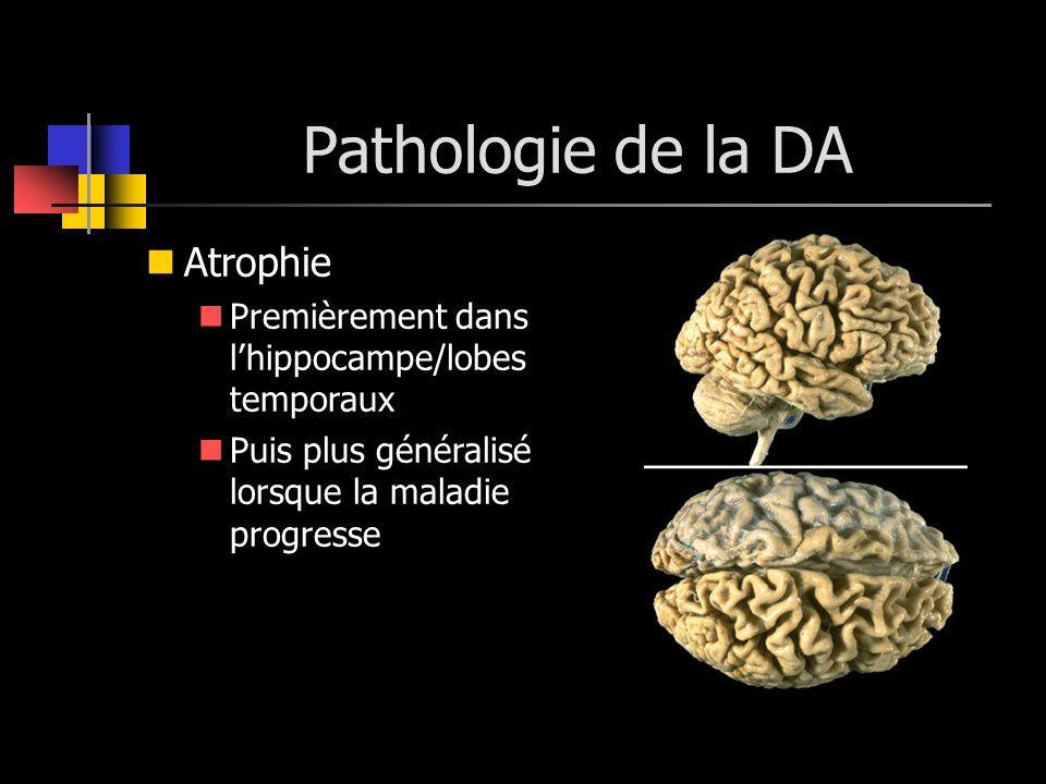Pathologie de la DA Atrophie Premièrement dans lhippocampe/lobes temporaux Puis plus généralisé lorsque la maladie progresse