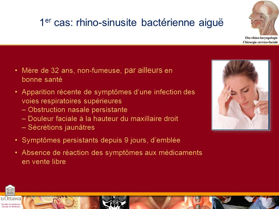 Rhino-sinusite aigue: pathogenèse Obstruction de lécoulement et retention des sécrétions