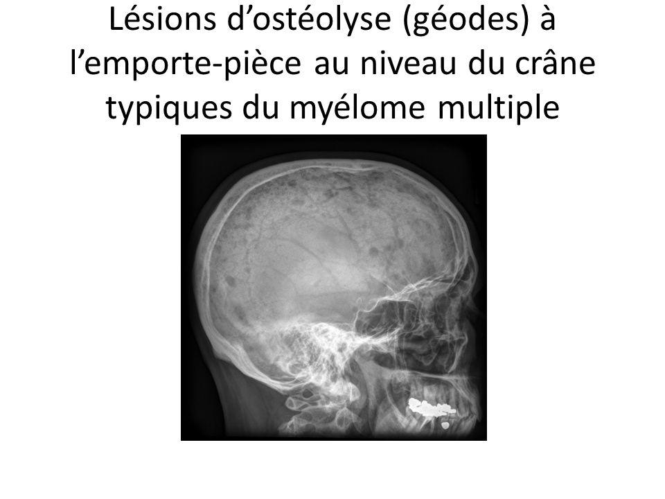 Lésions dostéolyse (géodes) à lemporte-pièce au niveau du crâne typiques du myélome multiple