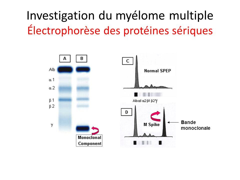 Investigation du myélome multiple Électrophorèse des protéines sériques Bande monoclonale
