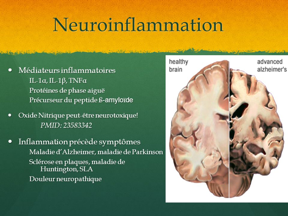 Neuroinflammation Médiateurs inflammatoires Médiateurs inflammatoires IL-1α, IL-1β, TNFα Protéines de phase aiguë Précurseur du peptide ß -amylo ï de