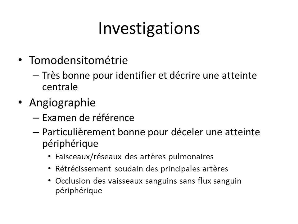 Investigations Tomodensitométrie – Très bonne pour identifier et décrire une atteinte centrale Angiographie – Examen de référence – Particulièrement b