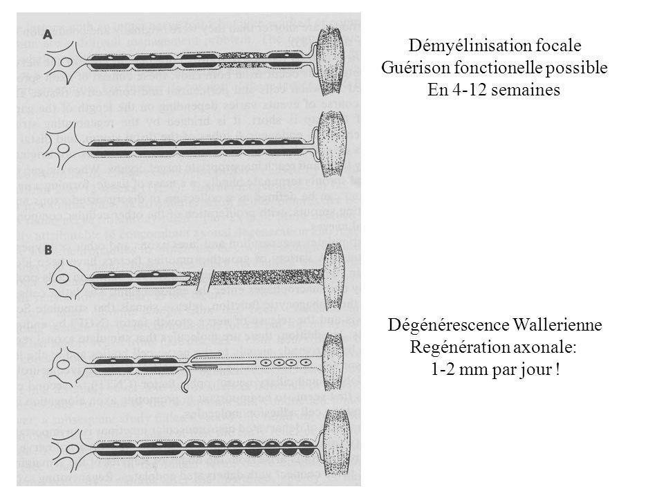 Démyélinisation focale Guérison fonctionelle possible En 4-12 semaines Dégénérescence Wallerienne Regénération axonale: 1-2 mm par jour !