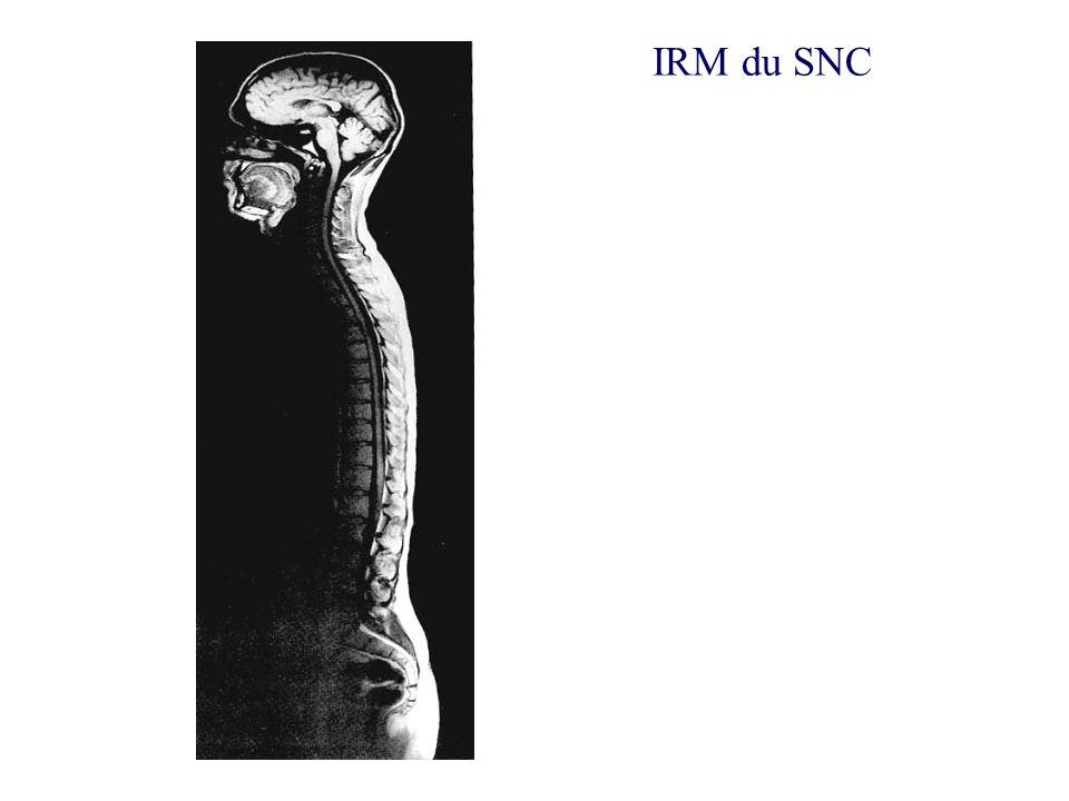 IRM du SNC