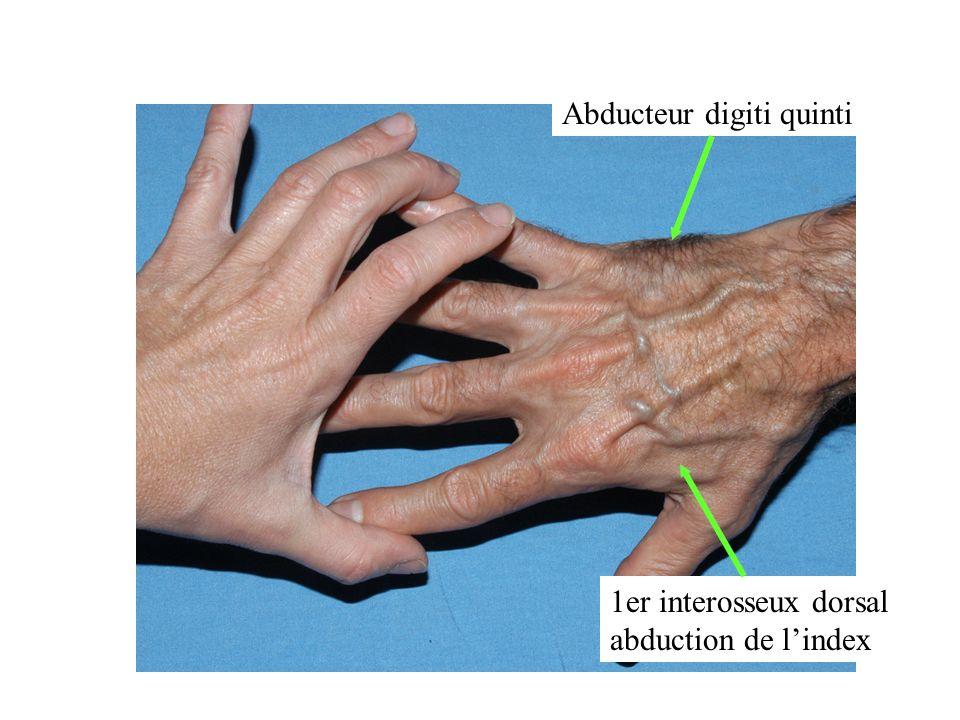 1er interosseux dorsal abduction de lindex Abducteur digiti quinti Nerf Cubital: évaluation motrice