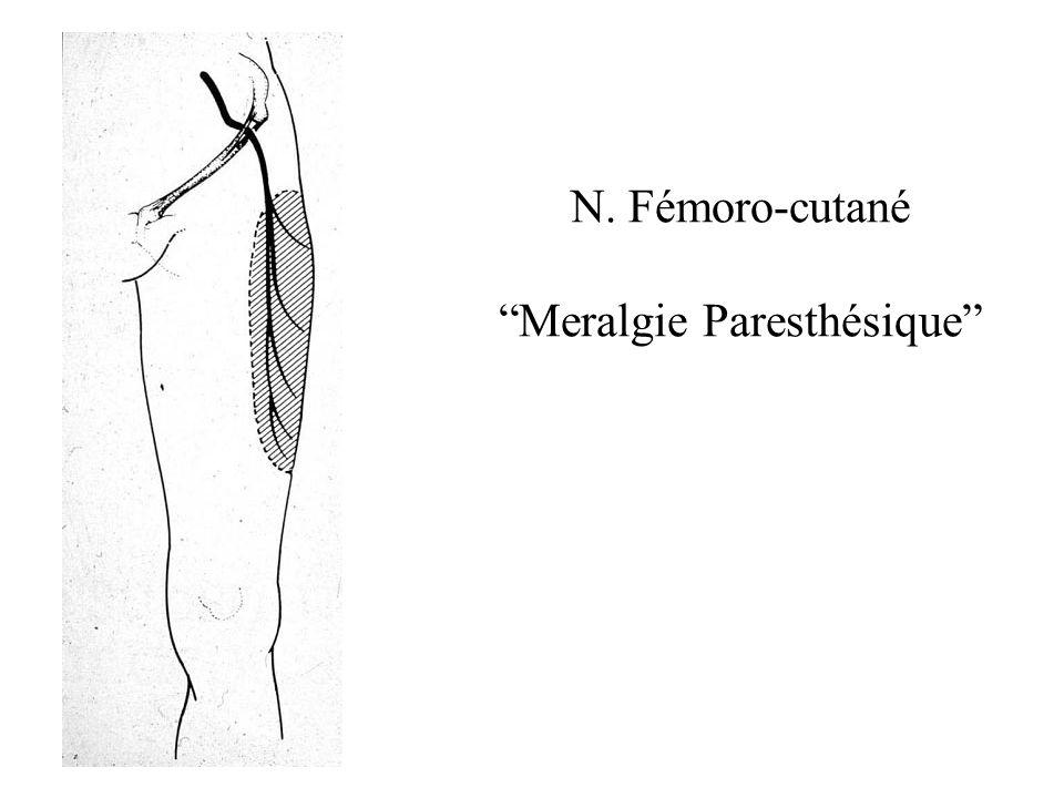 N. Fémoro-cutané Meralgie Paresthésique