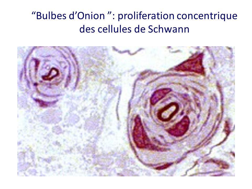 Bulbes dOnion : proliferation concentrique des cellules de Schwann
