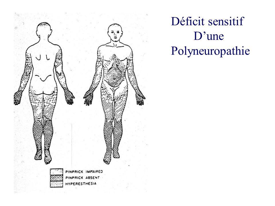 Déficit sensitif Dune Polyneuropathie