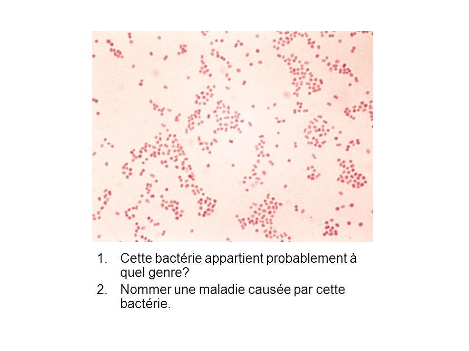 Test doxydase 3.Lequel de ces résultats correspond à celui qui serait attendu pour la bactérie présentée dans la diapo précédente.