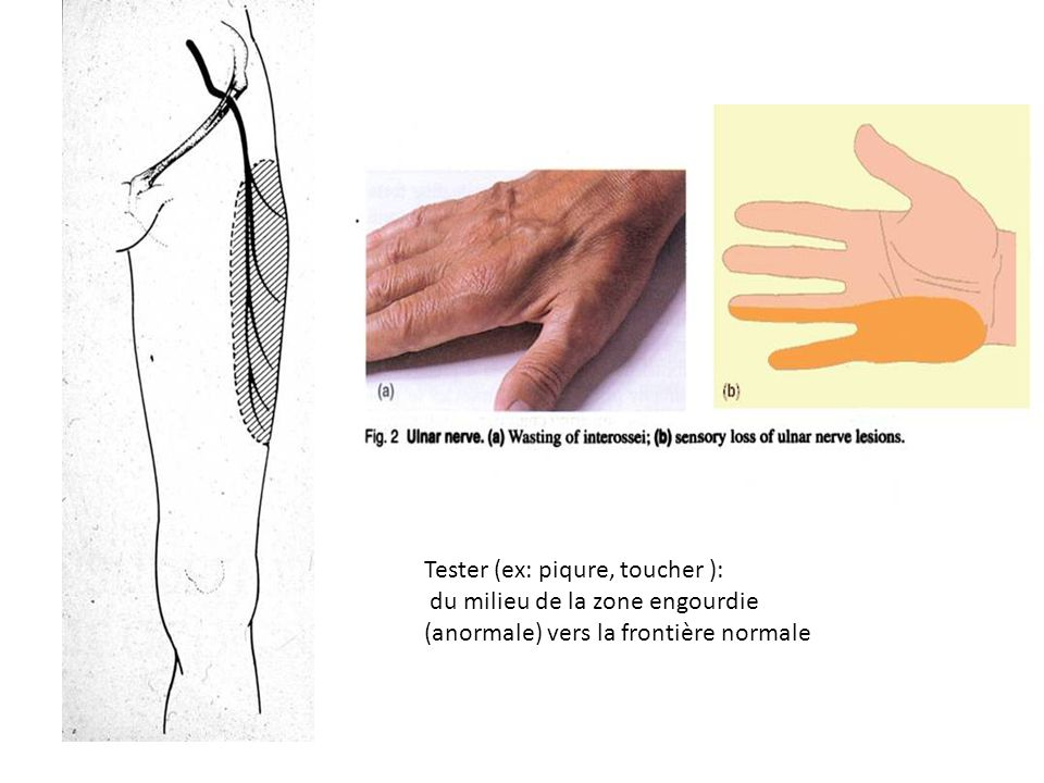 Tester (ex: piqure, toucher ): du milieu de la zone engourdie (anormale) vers la frontière normale