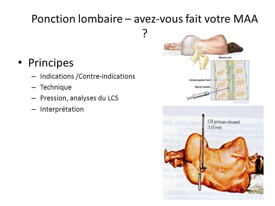 Ponction lombaire – avez-vous fait votre MAA ? Principes – Indications /Contre-indications – Technique – Pression, analyses du LCS – Interprétation