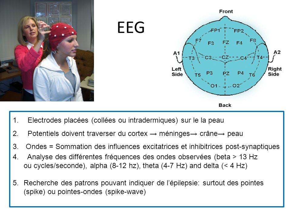 EEG 1. Electrodes placées (collées ou intradermiques) sur le la peau 2. Potentiels doivent traverser du cortex méninges crâne peau 3. Ondes = Sommatio