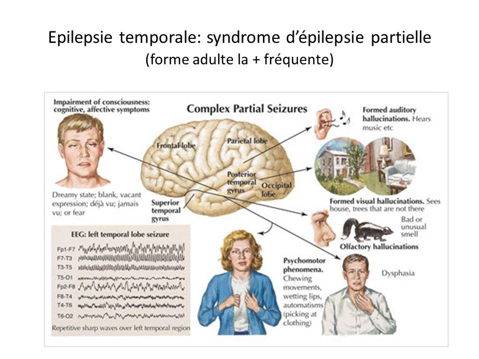 Epilepsie temporale: syndrome dépilepsie partielle (forme adulte la + fréquente)