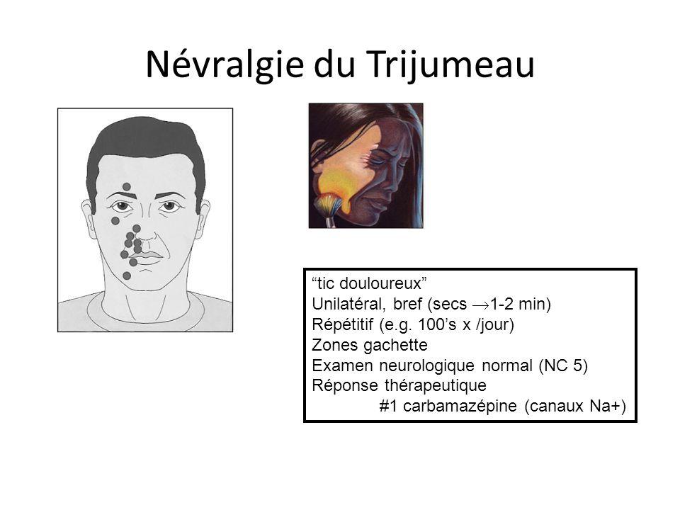Névralgie du Trijumeau tic douloureux Unilatéral, bref (secs 1-2 min) Répétitif (e.g. 100s x /jour) Zones gachette Examen neurologique normal (NC 5) R