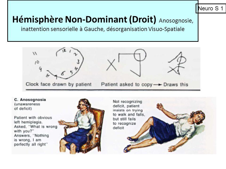 Hémisphère Non-Dominant (Droit) Anosognosie, inattention sensorielle à Gauche, désorganisation Visuo-Spatiale Neuro S 1