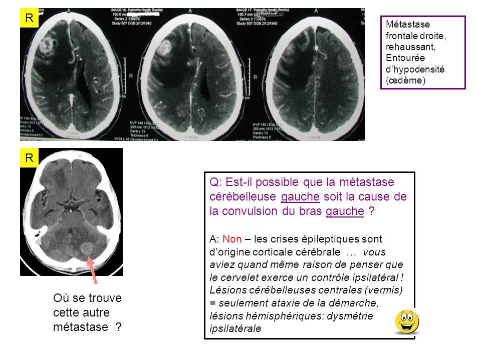 R R Métastase frontale droite, rehaussant, Entourée dhypodensité (œdème) Q: Est-il possible que la métastase cérébelleuse gauche soit la cause de la c