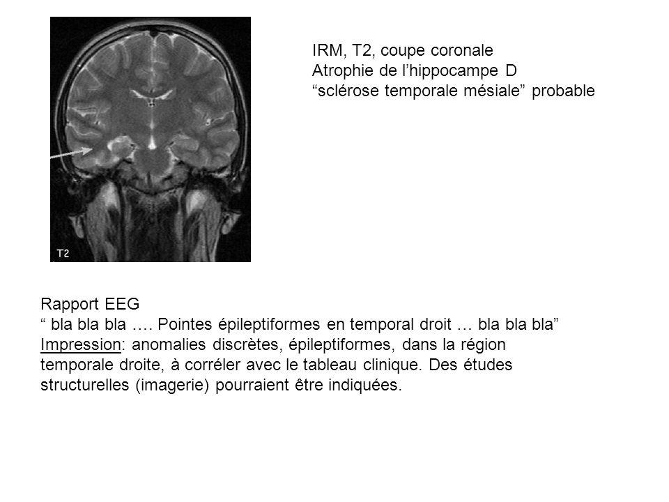 IRM, T2, coupe coronale Atrophie de lhippocampe D sclérose temporale mésiale probable Rapport EEG bla bla bla …. Pointes épileptiformes en temporal dr