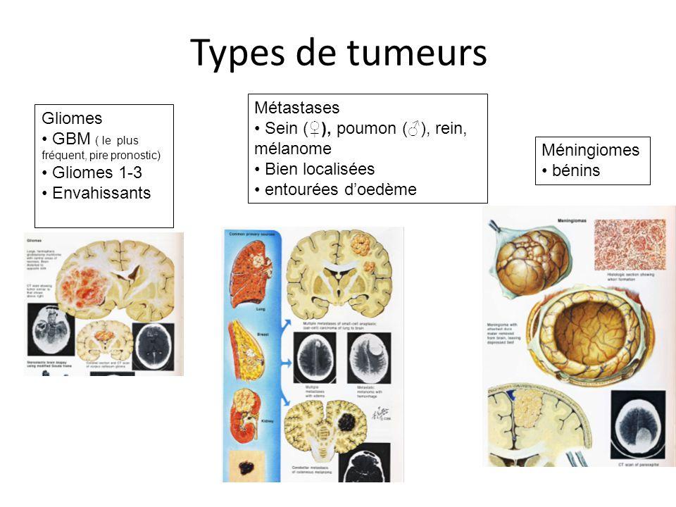 Types de tumeurs Gliomes GBM ( le plus fréquent, pire pronostic) Gliomes 1-3 Envahissants Métastases Sein (), poumon (), rein, mélanome Bien localisée