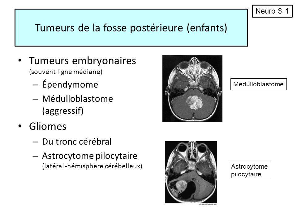Tumeurs de la fosse postérieure (enfants) Tumeurs embryonaires (souvent ligne médiane) – Épendymome – Médulloblastome (aggressif) Gliomes – Du tronc c