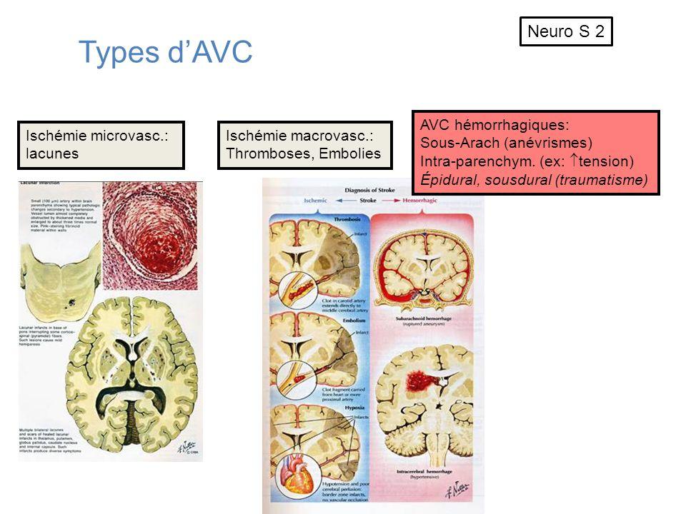 Types dAVC Ischémie microvasc.: lacunes Ischémie macrovasc.: Thromboses, Embolies AVC hémorrhagiques: Sous-Arach (anévrismes) Intra-parenchym. (ex: te
